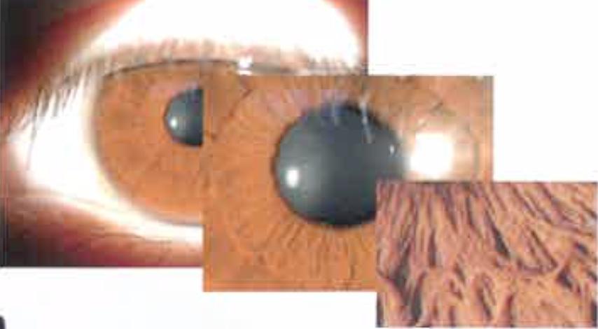 六六视觉66VT 数码裂隙灯显微镜 YZ5S产品细节