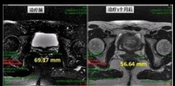 高科恒大GKHD 二氧化碳激光治疗机 (私密激光)CHX-100H产品细节