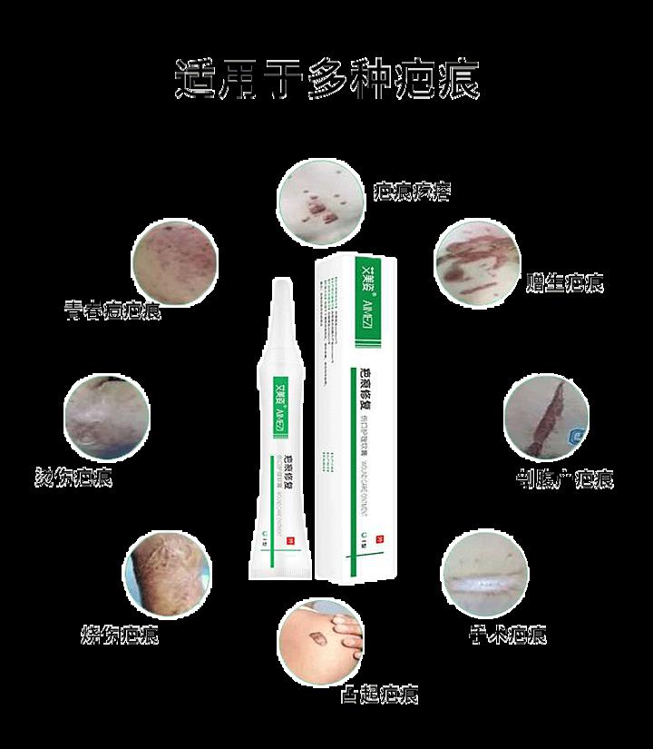 艾美姿 伤口护理软膏 疤痕修复(祛疤膏)Ⅰ型 (1支/盒)产品优势