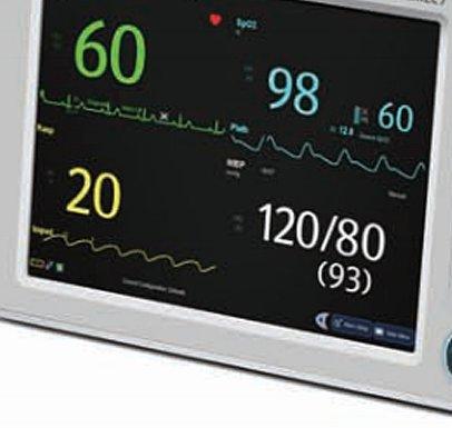 迈瑞Mindray 病人监护仪 uMEC7产品细节
