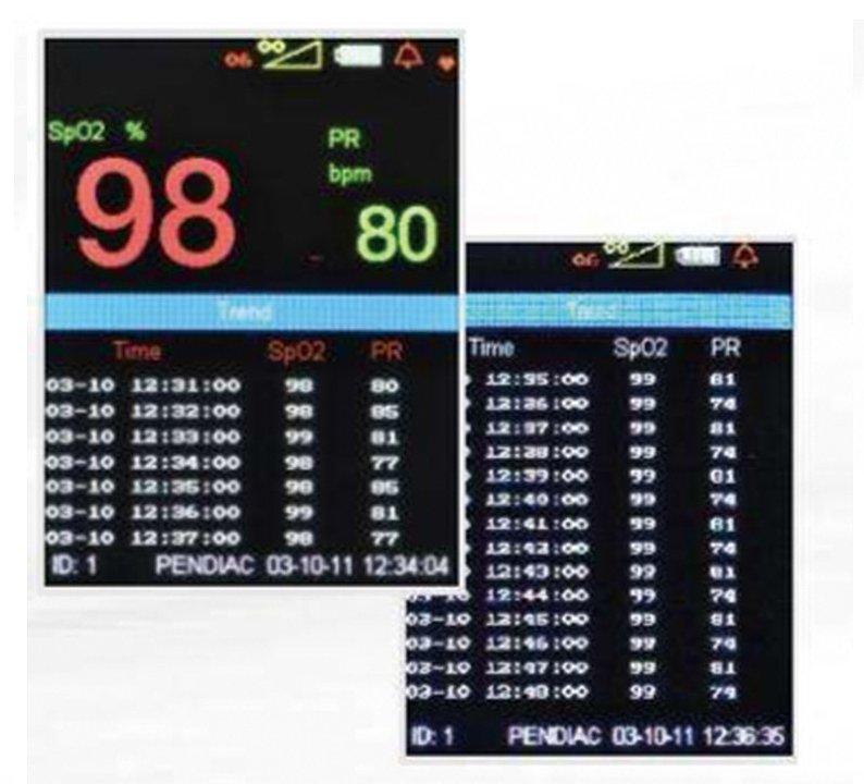 深迈sunmind 脉搏血氧仪 MP-80产品优势
