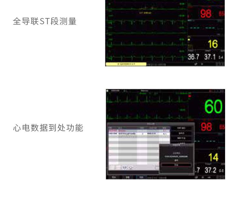 科瑞康-病人监护仪-K12特点_06.jpg