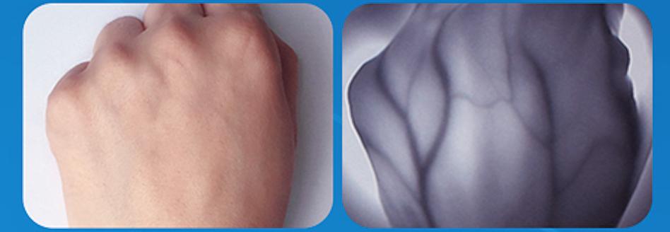 施盟德 血管显像仪 RCZ-1201(屏显启航版)产品优势