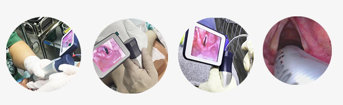 柏德 麻醉视频喉镜 BD-VS(硬管)产品优势
