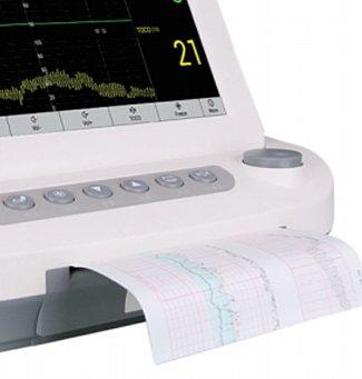 莱康宁LUCKCOME 母亲和胎儿监护仪 L8P(六参数)产品优势