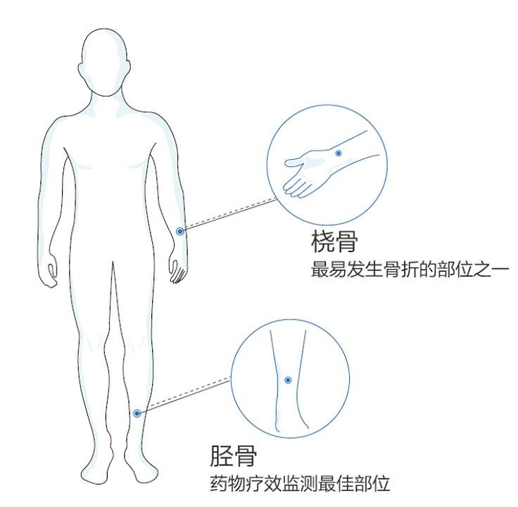 科进Kejin 超声骨密度仪 OSTEOKJ7000+便携式产品优势