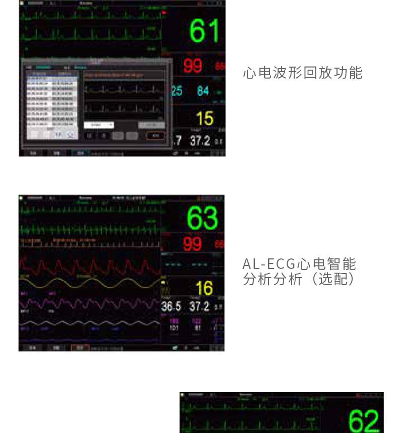 科瑞康-病人监护仪-K12特点_05.jpg